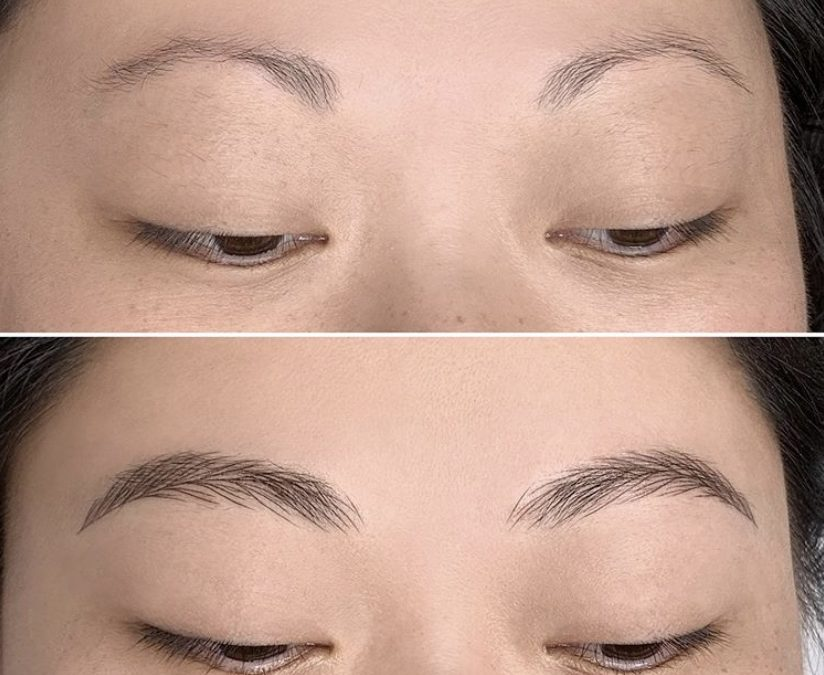 Permanent brows for extreme hair loss